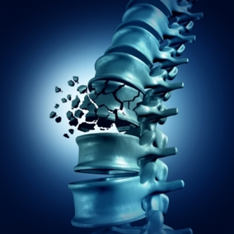 simulated photo of a shatter vertebrae