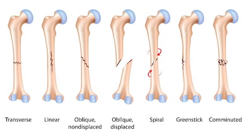 Infographic to different types of bone fractures: transverse, linear, oblique (nondisplaced), oblique (displaced), spiral, greenstick, comminuted